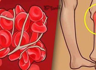 6 признаков того, что у Вас тромбы