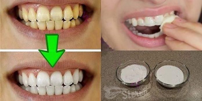 Обладатели желтых зубов, в основном это заядлые курильщики, стараются лишний раз не улыбаться и смеяться чтобы скрыть свои зубы.