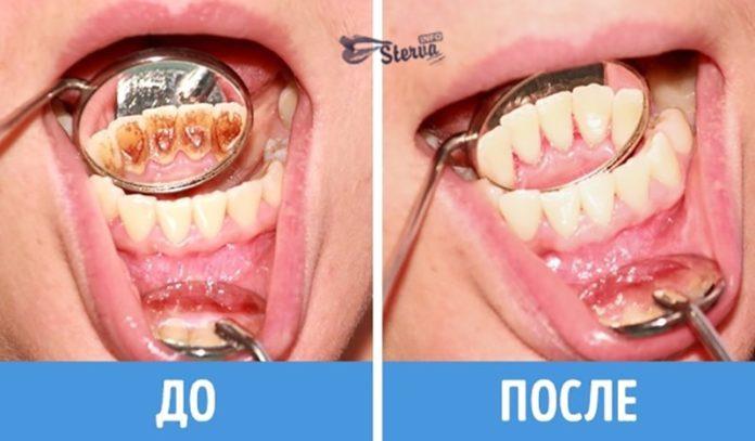 ошибки, зубы, чистить, правильно