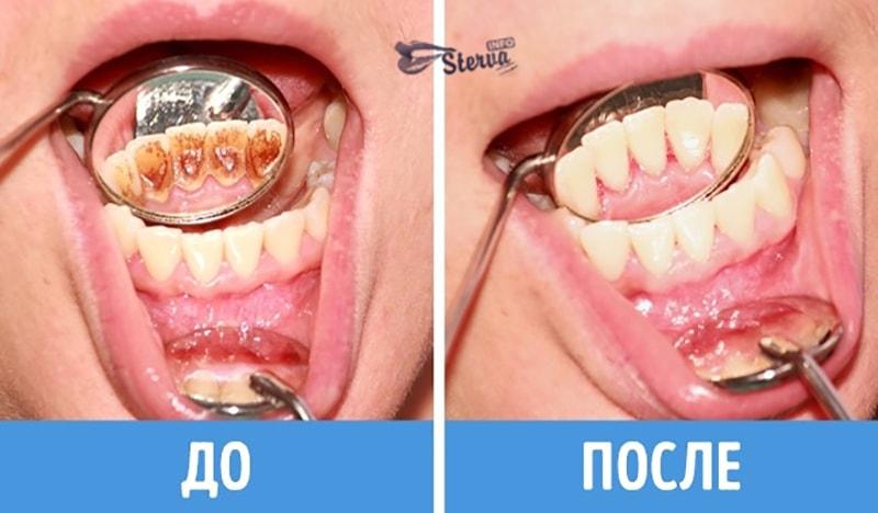 уход за желтыми зубами