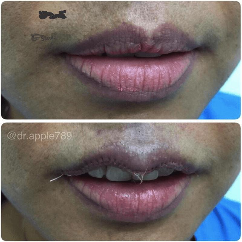одрезание верхней губы